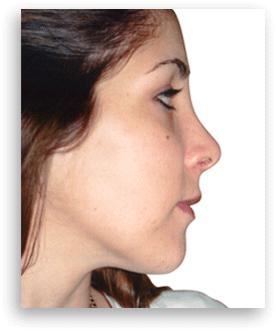 Después de rinoplastia Clínica Dual Valencia