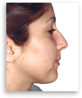 Pictures before a Rhinoplasty surgery | Clínica Dual Valencia