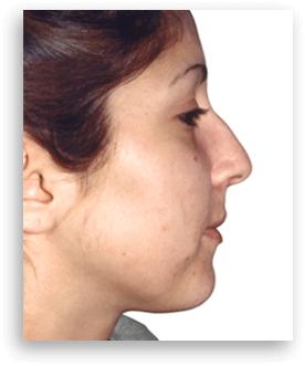 瓦伦西亚DUAL诊所隆鼻手术前