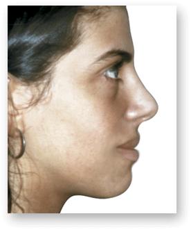 После ринопластики Клиника Dual в Валенсии